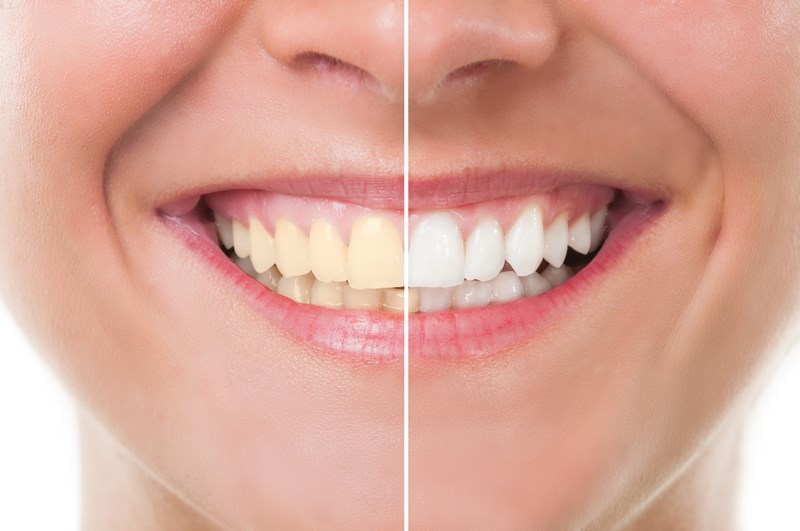 Know Everything about Teeth Whitening service at Granville