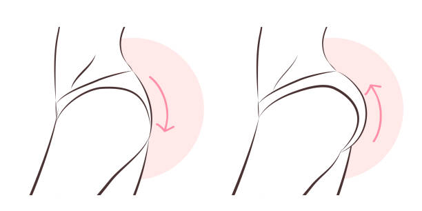 All You Need To Know About Buttock Implant